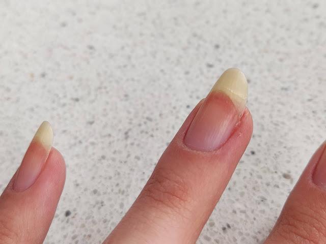 nadłamany paznokieć