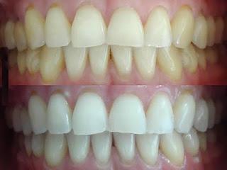 astuce pour blanchir les dents jaunes