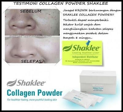 Kolagen, collagen powder shaklee, testimoni, antipenuaan, awet muda, kulit kendur, payudara kendur, jerawat, jeragat, pigmentasi, sumber kolagen, kesan penggunaan kolagen, manfaat kolagen,