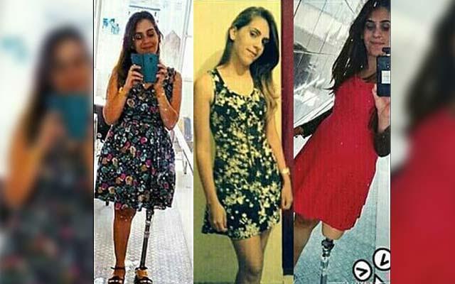 Jacobina: Jovem que teve perna amputada em acidente com ônibus da São Luiz faz desabafo