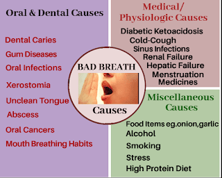 Causes of bad breath,halitosis causes,muh ji badboo ke karn
