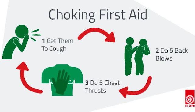 Choking First Aid: Health Tip
