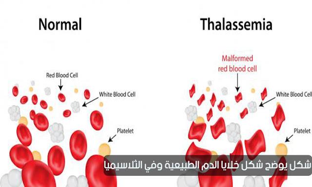مرض الثلاسيميا   الأعراض والأسباب والعلاج كيفية الحد من انتشاره