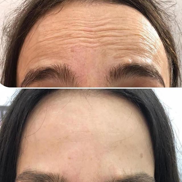 DIY crème anti-vieillissement dont les propriétés effacent les rides