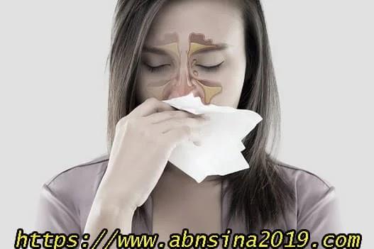 التهابات الجيوب الأنفية