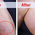 Apply This Mixture Into Your Varicose Veins and It Will Remove in Just 14 Days