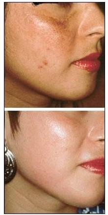 Bottox caps antes e depois