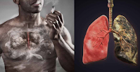 Difference Between Healthy Lungs And Those Of A Smoker