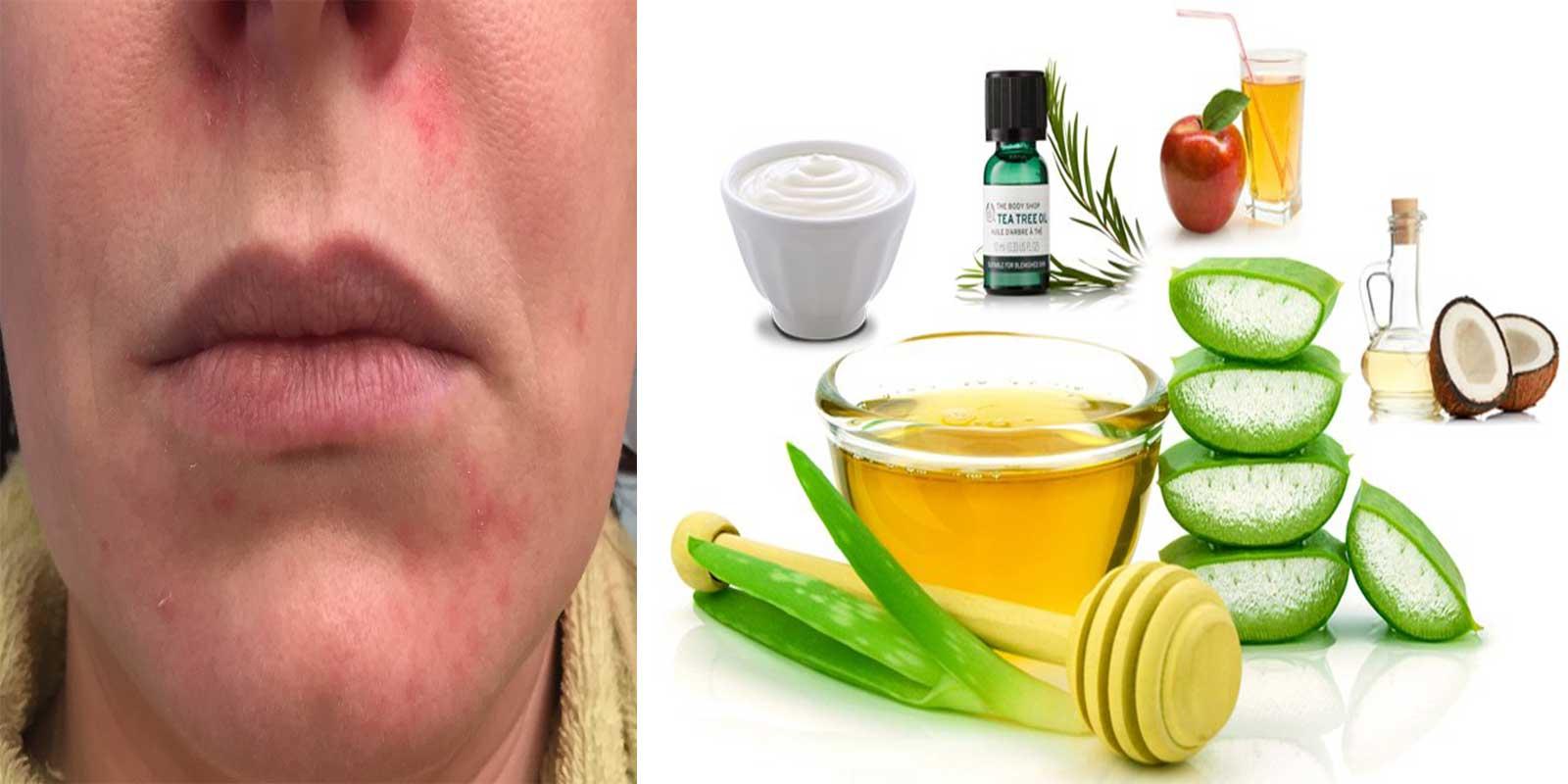 Remèdes Maison pour la Dermatite Périorale