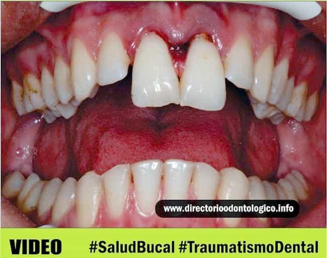 extrusión dental