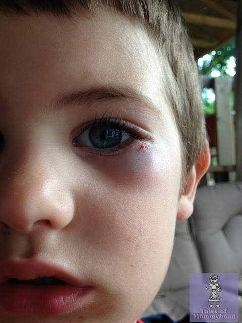 kids black eye, frisbee injury, canada day fun, kids hurt