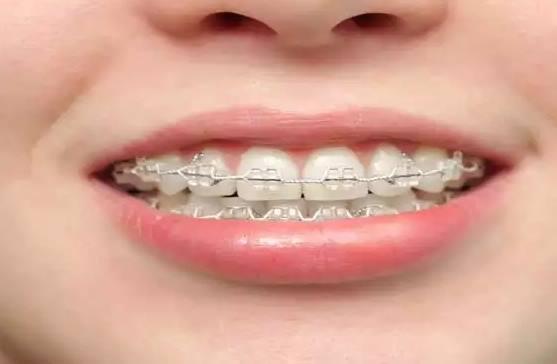 Pasang Kawat Gigi Konsula