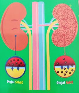 cara merawat ginjal, bagaimana ginjal yang sehat, penyakit yang terjadi di ginjal, mengapa bisa sakit ginjal,