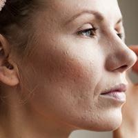 العلاجات المنزلية لندبات حب الشباب