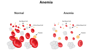 anemia treatment symptoms