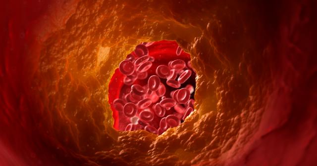 Apakah Tanda Kolesterol Tinggi Dalam Darah