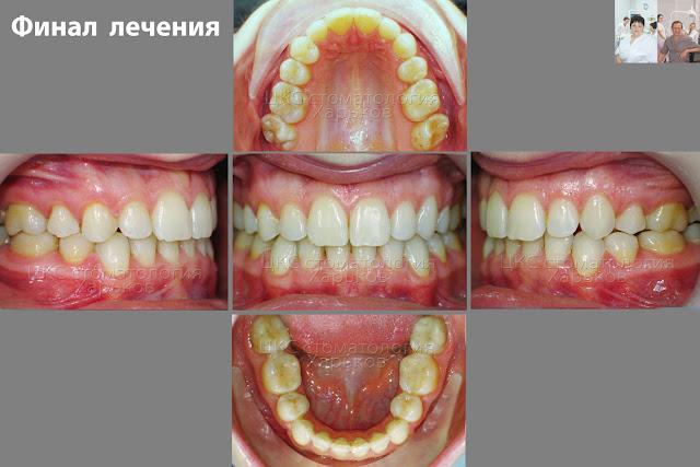 После лечения керамическими и металическими брекетами