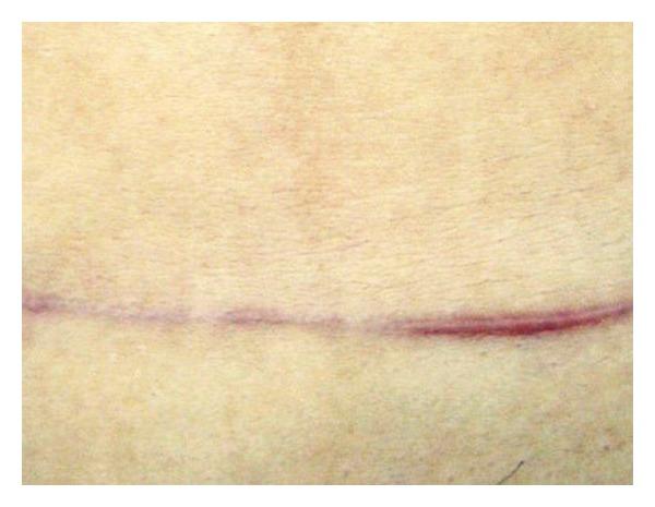 Phần bên trái vết sẹo sử dụng chiết xuất hành tây cho kết quả mờ rõ rệt so với phần bên phải sử dụng vaseline