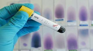 Alternative HIV Treatment - Medical Treatment or Alternative Cure?