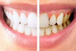 5 Cara Ampuh Menghilangkan karang Gigi