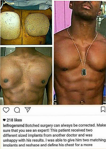 Ladies beware! Men are now getting real six-packs chest through surgery (pictures)