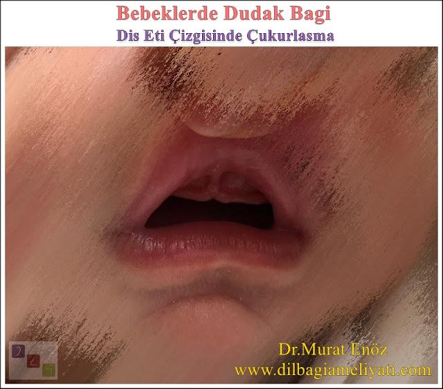 Diş Eti Çizgisinde Çukurlaşma - Çentikleşme - Diastema - Dişlerde Ayrılma - Bebeklerde Üst Dudak Bağı