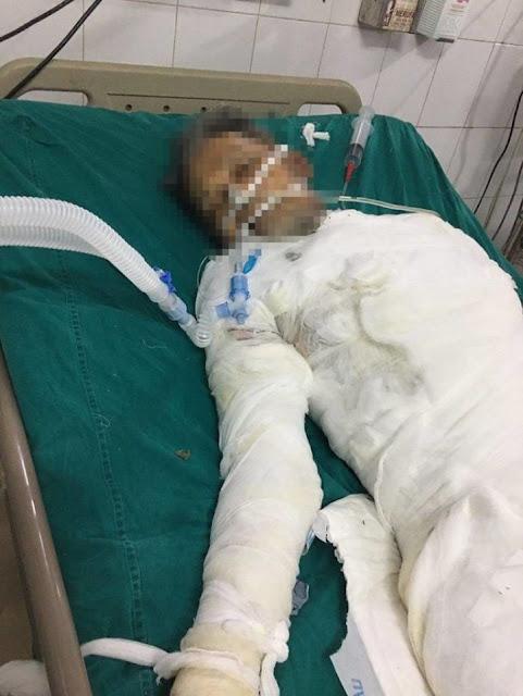 Hà Nam: Tự tử - dùng xăng tự thiêu vì không đồng tình với phán quyết của toà án
