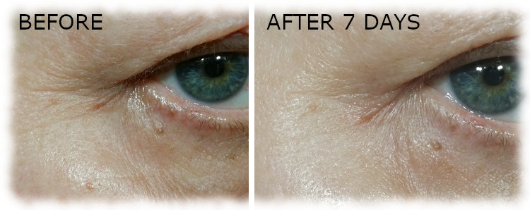 Before & after photos of right eye