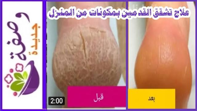 علاج تشققات الرجلين طبيعيا،علاج تشقق القدمين بالفازلين باسرع وقت،علاج تشقق القدمين الشديد نهائيا،علاج تشقق القدمين بالاعشاب