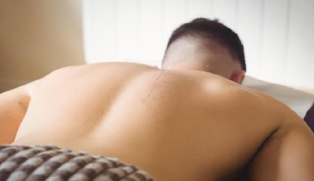 Informasi lengkap tentang  fungsi dan manfaat akupuntur