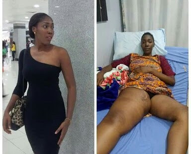 Nogerian Lady Who Asked For Money To Treat Cancer Has Died