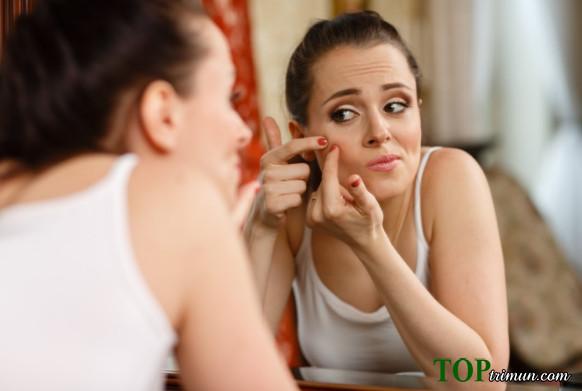 Những cách trị mụn cho tuổi teen hiệu quả nhất (Phần 1)