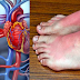 8 Warning Signs Of A Blood Clot That Can't Be Ignored