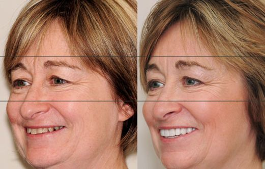Facial muscle toning exercises