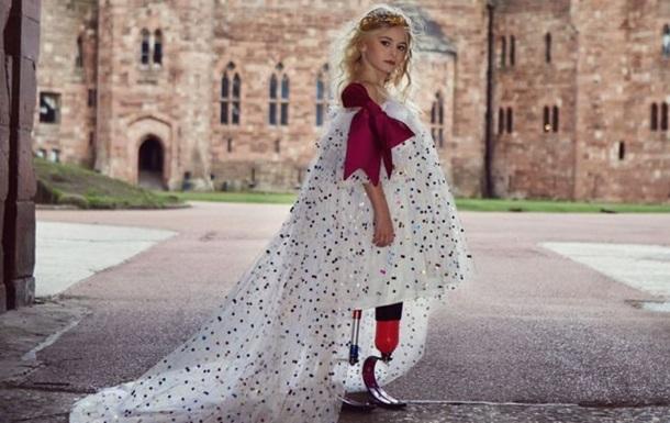 9-річна дівчинка без ніг вийде на подіум Тижня моди в Нью-Йорку