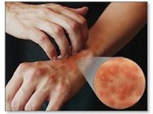 Obat Gatal De Nature Kapsul Bersih Darah dan Salep Exclear