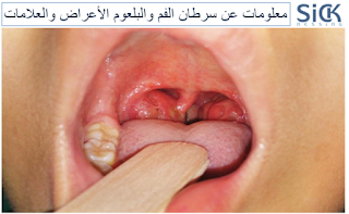 معلومات عن سرطان الفم والبلعوم الأعراض والعلامات