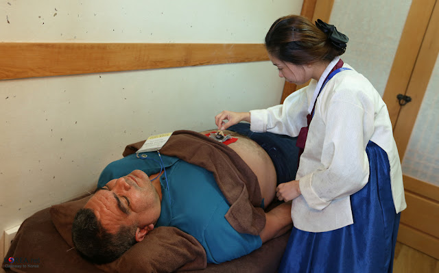 top health benefits of Chinese therapy acupuncture