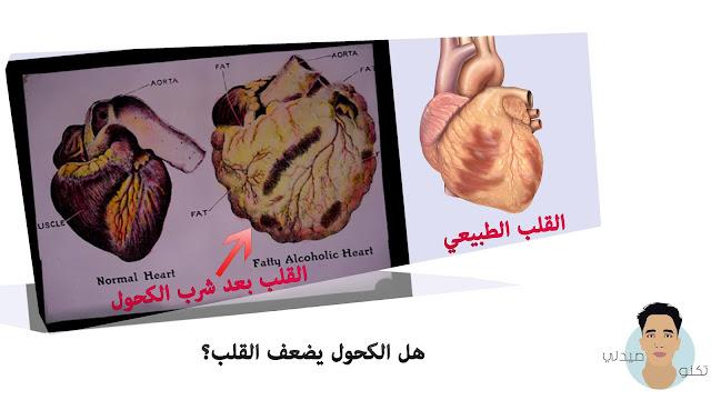 هل الكحول يضعف القلب؟