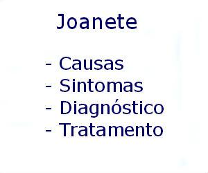 Joanete causas sintomas diagnóstico tratamento prevenção