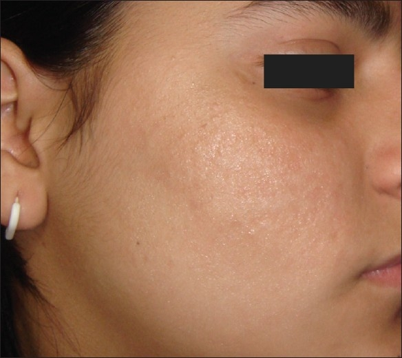 The Aesthetic Doctor's Blog: Microneedling With ...