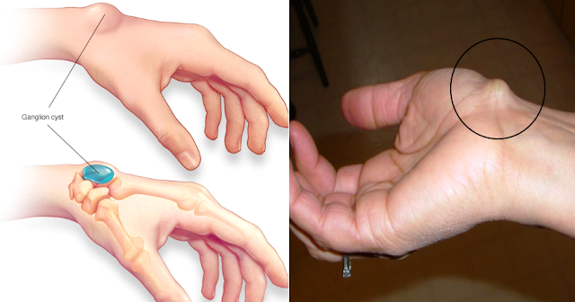 Hidden Facts About Ganglion Cyst: What Are Causes, Meaning, Symptoms and Treatment