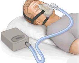CPAP treatment can be taken into consideration in case of any level of severe sleep apnea. Most of the CPAP devices also offer an alternate measurement of AHI, to make sure the appropriate reaction to the treatment.