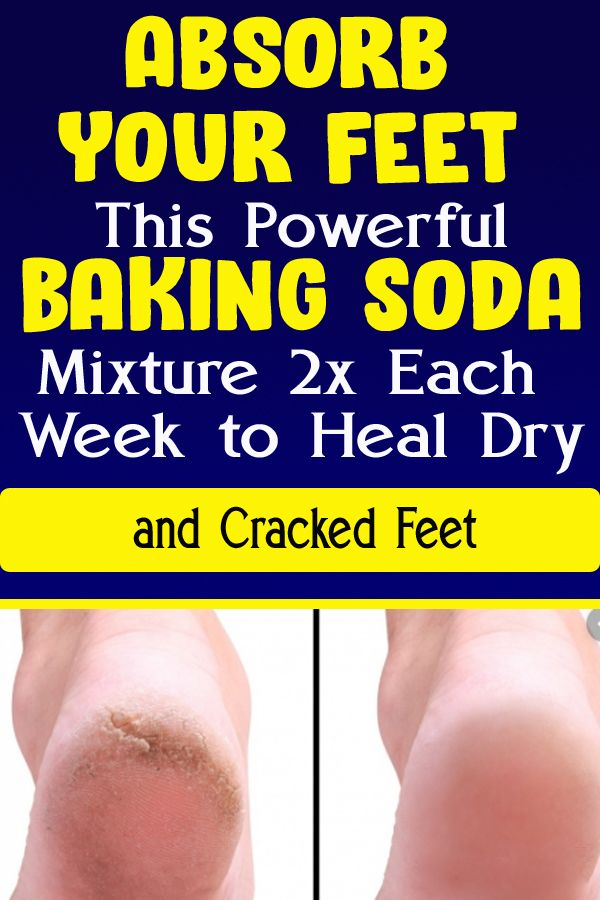 Absorb Your Feet This Powerful Baking Soda Mixture 2x Each Week to Heal Dry and Cracked Feet