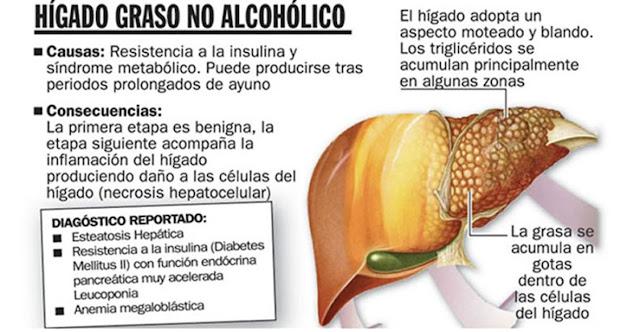Higado graso, Curar el Higado Graso, Funciones del Higado, Importancia del Higado, Higado Graso Alcoholico, Higado Graso No Alcoholico,