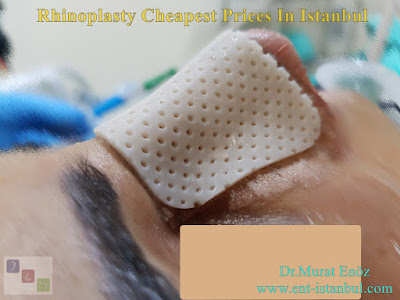 Rhinoplasty Cheapest Prices In Istanbul