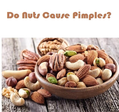 Do groundnuts cause pimples?