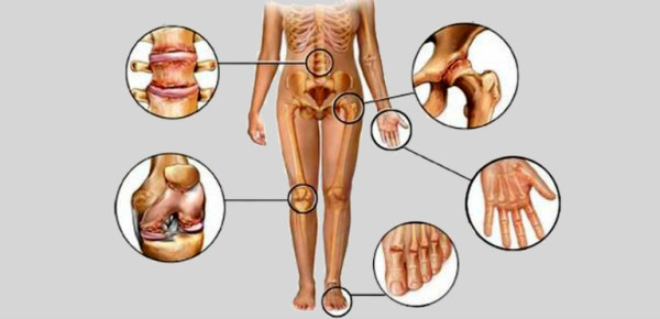 2 Effective Juices For Naturally Treating Arthritis Joint Pain
