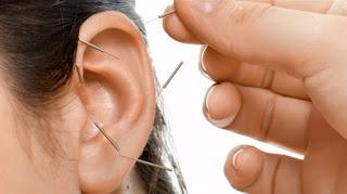 Akupunktur Nasıl Uygulanır