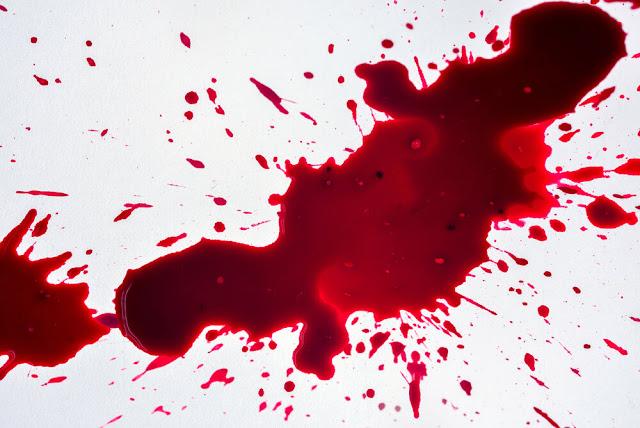 تفسير حلم ذبح الخروف وخروج دم